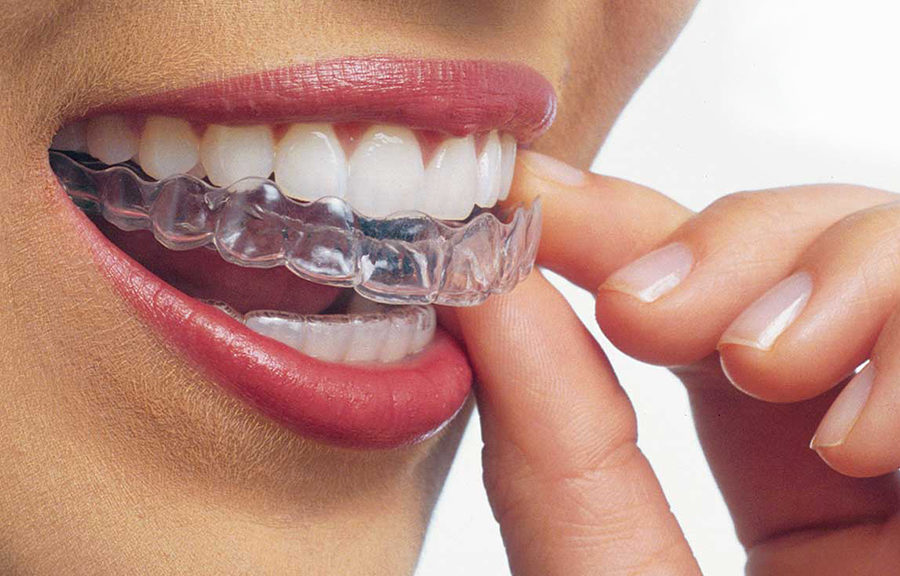 attelle-dentaire